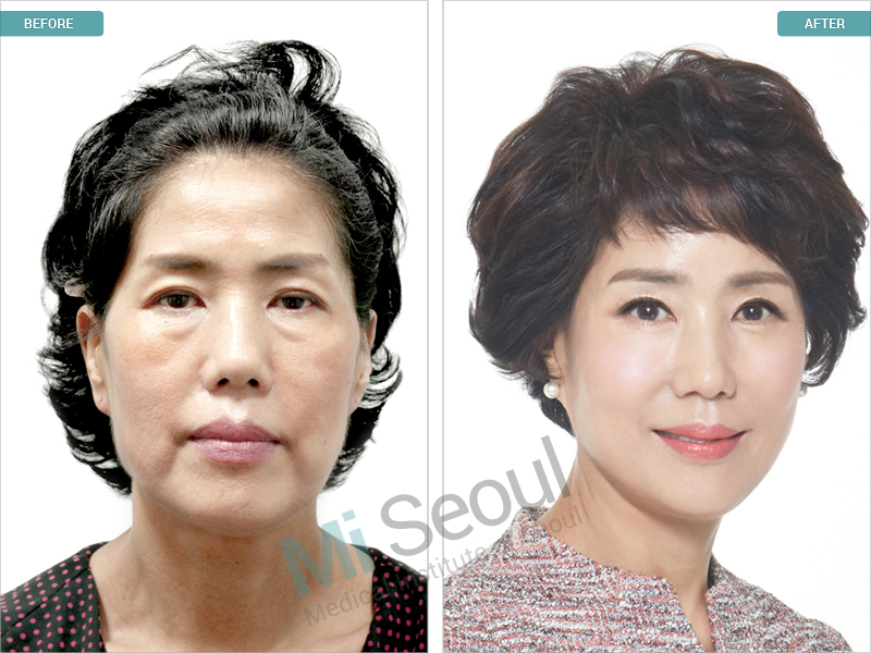 http://mi-seoul.com/wp-content/gallery/before-after/Facelift2.jpg