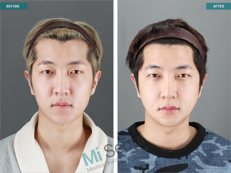 plastic surgery trends in south korea An introduction to korean plastic surgery prices in the last decade, seoul has earned a reputation for being the beauty belt of south korea, an ideal destination for world-class plastic surgery.