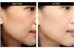 whitening-before-and-after1
