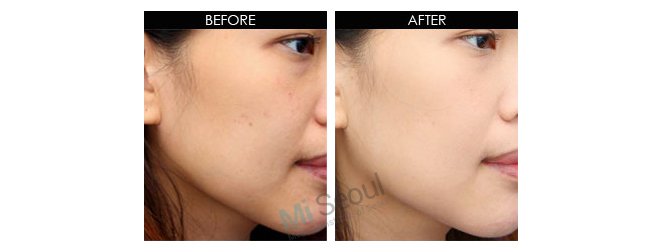 whitening-before-and-after