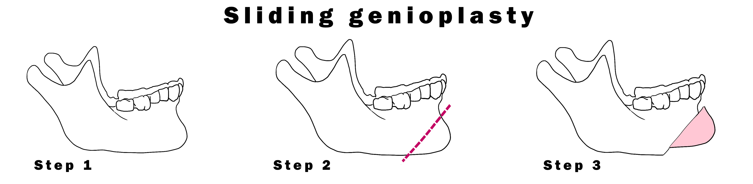 Sliding Genioplasty