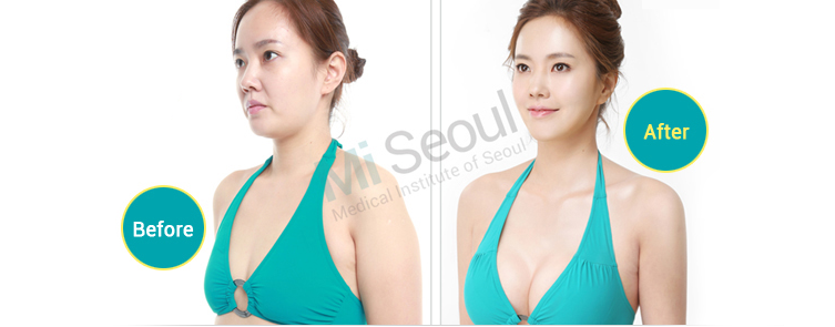 Breast Augmentation - Reconstruction - Mi Seoul